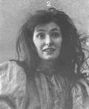 Plate III - Melancholia & Mania 1898 (3)